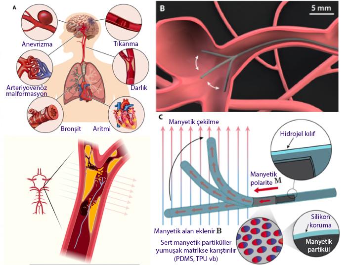 ferromanyetik yumuşak sürekli continuum robotlar anevrizma ve iskemi tedavisi