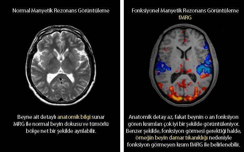 fonksiyonel MRG ve normanl manyetik rezonans karşılaştırması