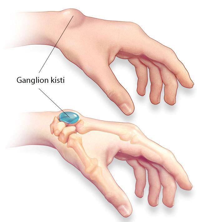ganglion kisti nedir el bileği