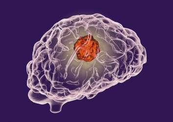 Beyin tümörü GBM'de immünoterapi etkinliğini değerlendiren en kapsamlı araştırmanın sonuçları