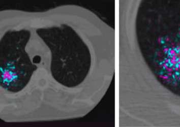Google, akciğer kanseri erken tanısı için derin öğrenme tabanlı yapay zeka geliştirdi