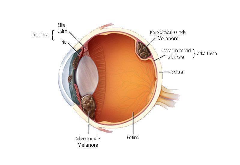 göz oküler uveal melanomu nerede yerleşir anatomisi