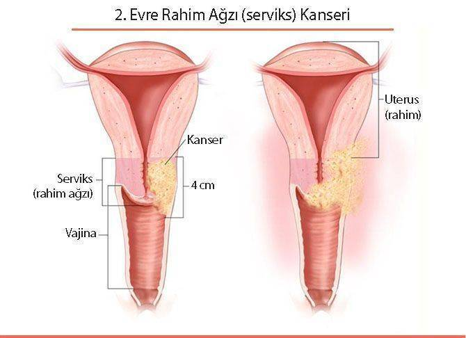 ikinci 2 evre rahim ağzı serviks kanseri