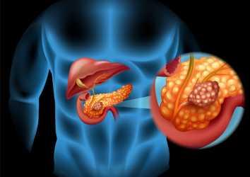 İleri evre pankreas nöroendokrin tümör tedavisi için surufatinib