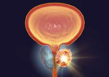 İleri evre prostat kanseri tedavisi – tarihi ve gelinen son nokta
