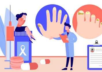 İmmünoterapi ve akıllı kanser ilaçlarında TIRNAK YAN ETKİLERİ