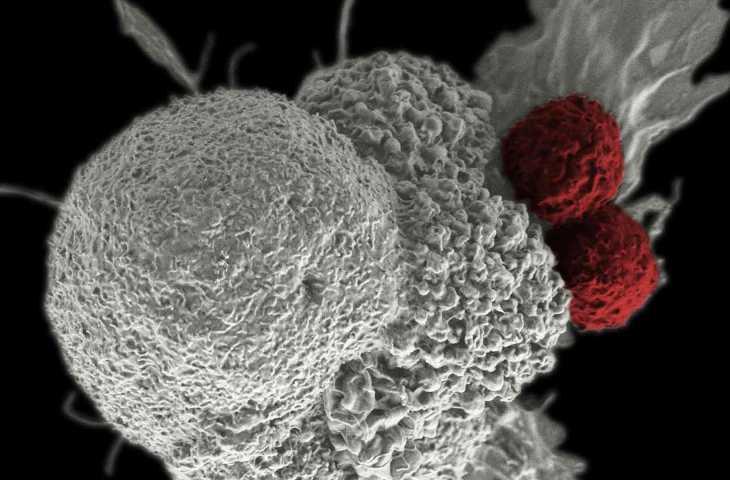 İnvaziv kanser nedir? Bilmeniz gerekenler