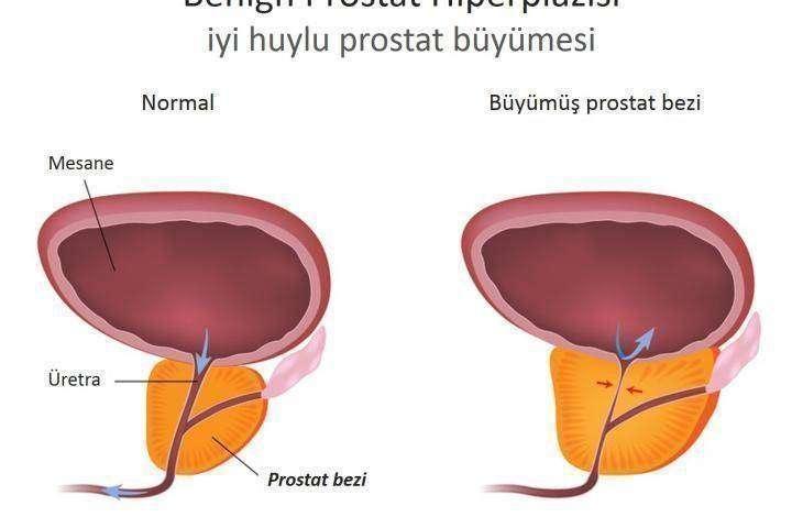 İyi huylu - benign prostat büyümesi – BPH