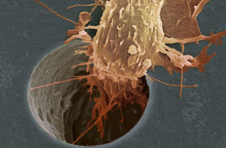 Kanser hücresinin hareketini engelleyerek metastazı önleyen yeni bir tedavi stratejisi