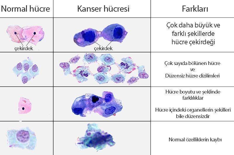 kanser ve normal hücre farkı onkolojik terimler