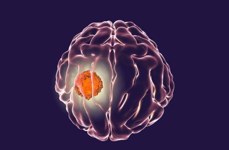 Kanser virüs aşısı ile beyin tümörü GBM tedavisinde görülmemiş bir başarı