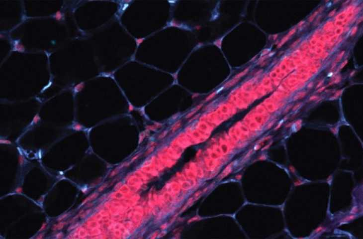 Hangi hücrelerin kansere dönüşeceğini tahmin etmeye yarayabilecek bir keşif