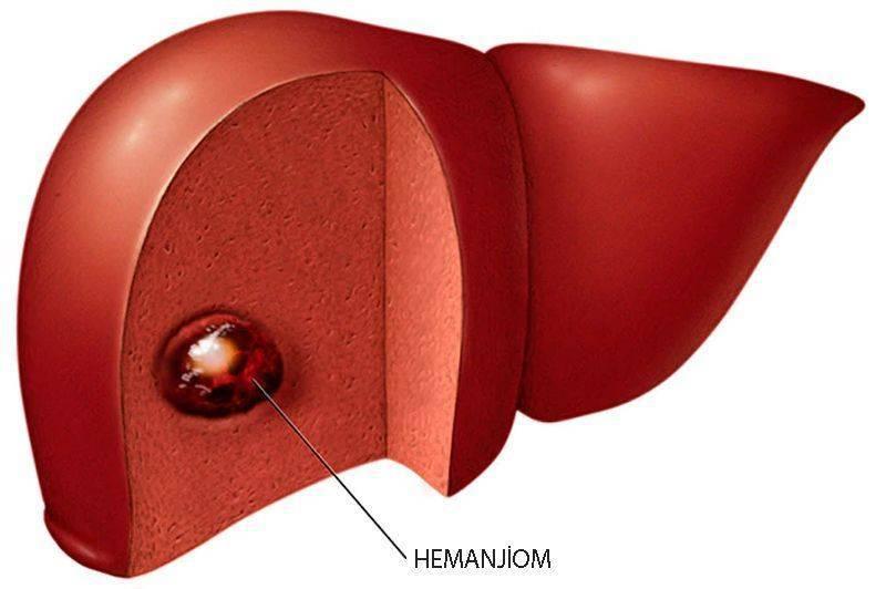 karaciğer hemanjiomu nedir hemanjiyom