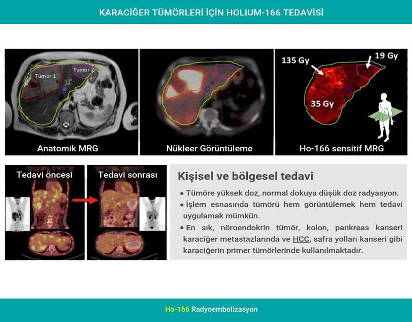 karaciger tumorleri icin holium 166 tedavisi 2