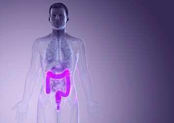 Kolon-rektum kanserinde nüks (tekrar) riskini ve kemoterapi ihtiyacını belirlemek için LİKİT (KANDAN) BİYOPSİ