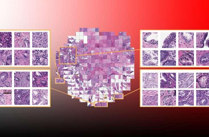 Kanserde patoloji sonucu için kompütasyonel karar destek sistemleri yaygınlaşıyor