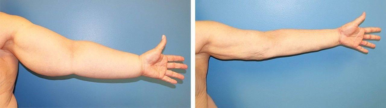 lenfödemli kolun liposuction ameliyatı ile tedavisi