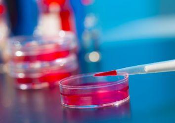 Likit biyopsi (kan testi) ile kanser erken teşhisine bir adım daha yaklaştık