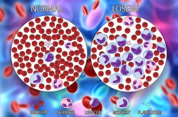 lösemi ve normal kan farkı