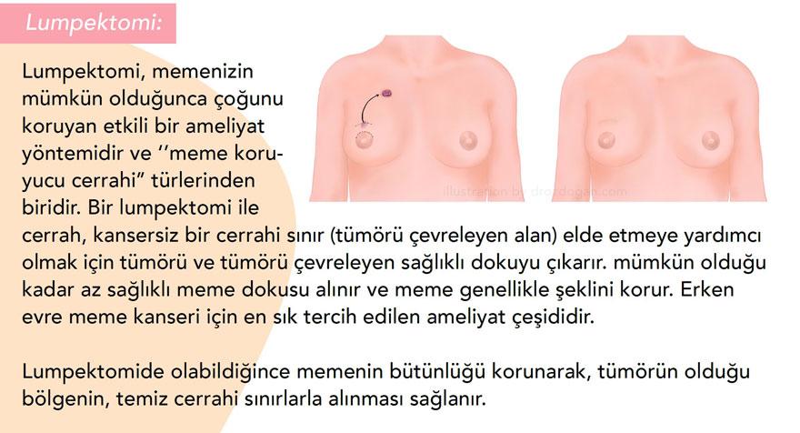 lumpektomi nedir