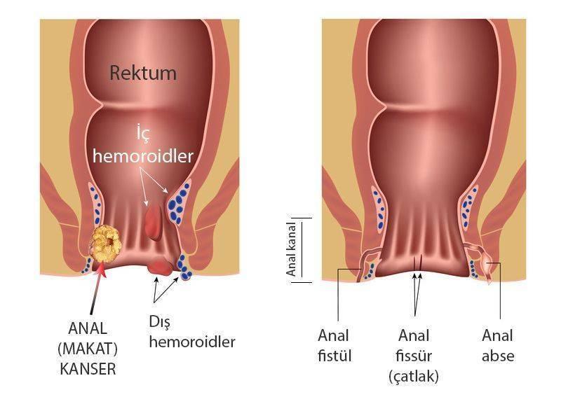 makat kanseri nedir ve diğer anal bozukluklar