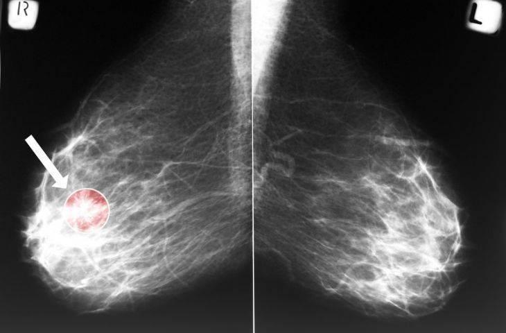 Mamografi sonucu negatif olduğu halde meme kanseri riski var mıdır?