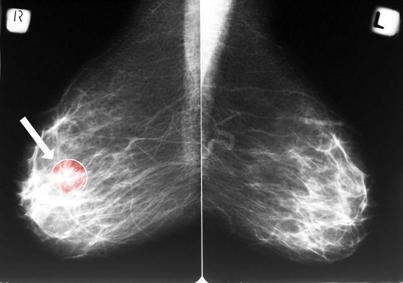 https://www.drozdogan.com/news-images/mamografi-sonucu-negatif-meme-kanseri-gelisir-mi-205526