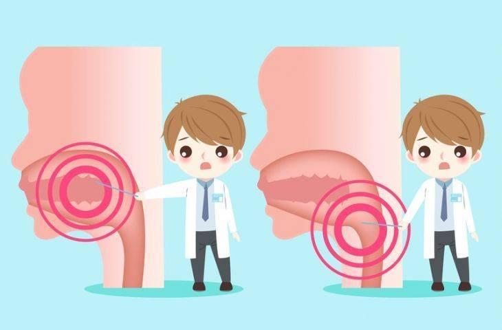 Melatoin jeli ile baş-boyun kanseri tedavilerine bağlı ağız yaralarından korunmak