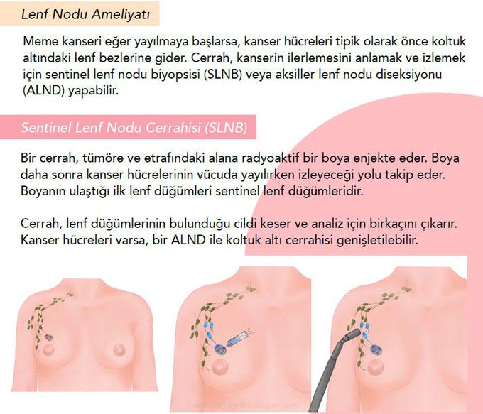 meme kanserinde sentinel lenf nodu biyopsisi