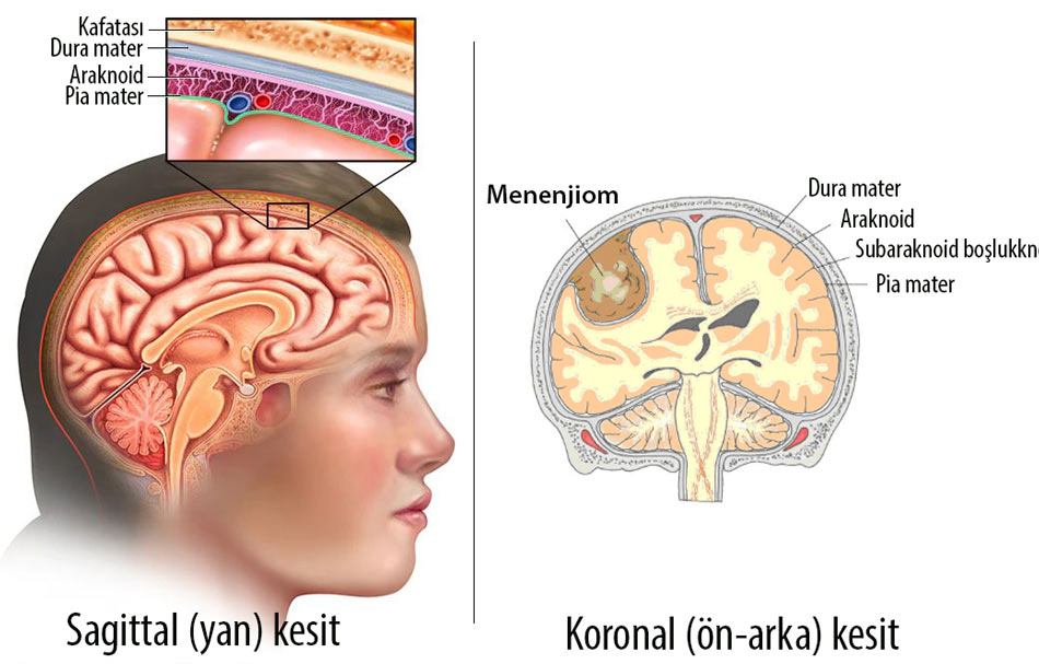 menenjiom nedir anatomisi dura pia araknoid mater beyin tümörü
