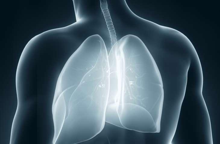 Plevral mezotelyoma (akciğer zarı kanseri) tedavisinde elektriksel akım tedavisi FDA onayı aldı