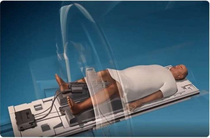 MR eşliğinde ultrason ablasyonu: prostat kanseri için daha güvenli ve daha iyi tedavi