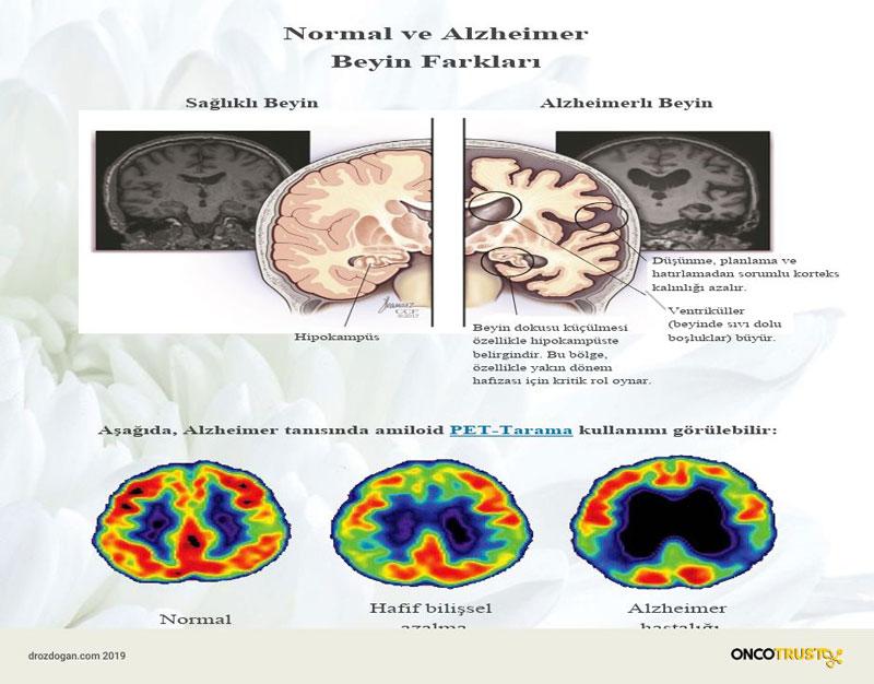 normal alzheimer beyin farklari