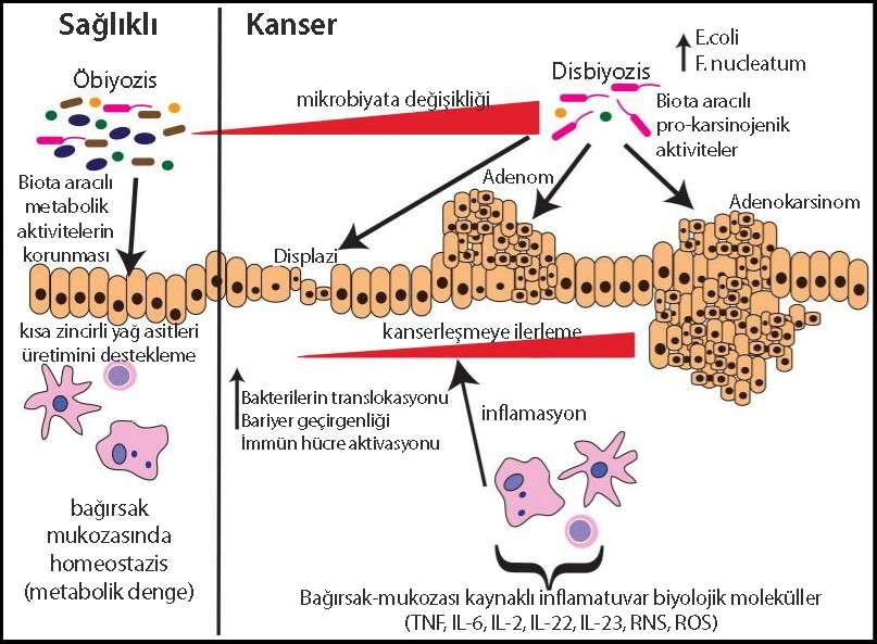 normal ve kanserli kolon dokusu mikrobiyota değişiklikleri nasıl kanser yapar