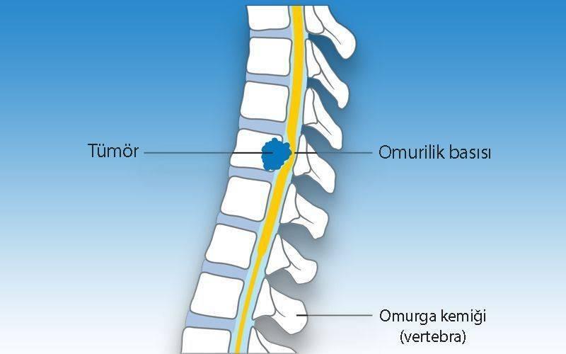 omurilige spinal korda bası yapan bir tümör