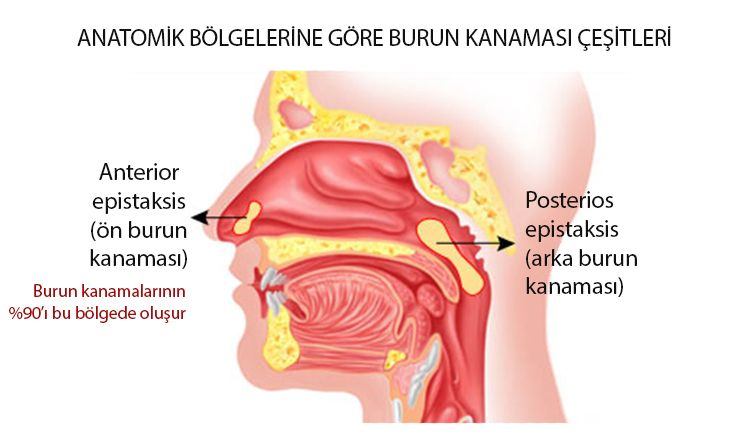 ön anterior ve arka posterior burun kanaması çeşitleri