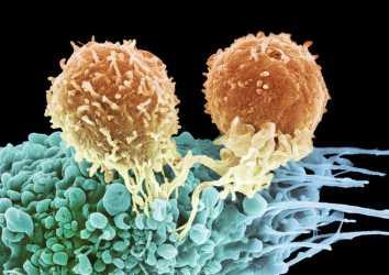 Opdivo (nivolumab) immünoterapisi nedir? Hangi kanserlerde etkilidir?