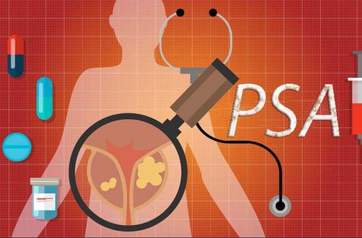 Orta yaşta bakılan bazal PSA değeri, prostat kanseri erken tanısında kullanılabilir mi?