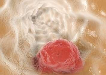 Özofagus (yemek borusu) kanseri ikinci basamak tedavisinde immünoterapi nivolumab FDA onayı aldı
