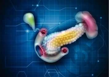 Pankreas kanseri tedavisinde son gelişmeler