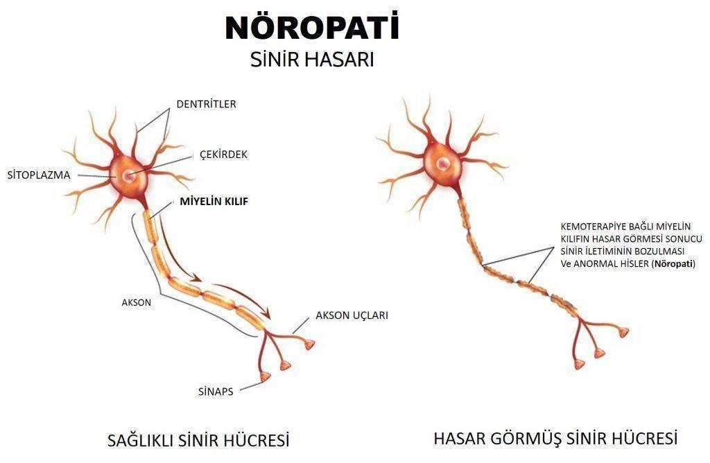 periferal nöropati kemoterapiye bağlı sinir hasarı 1024x668