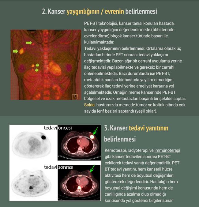pet bt pozitron emisyon tomografisi nedir tarihcesi  (2)