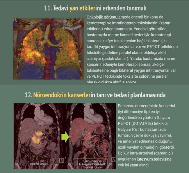pet bt pozitron emisyon tomografisi nedir tarihcesi  (6)