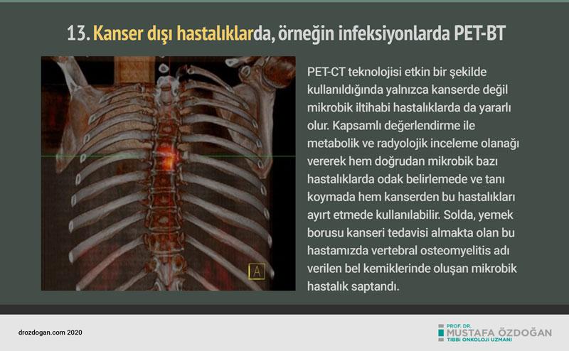 pet bt pozitron emisyon tomografisi nedir tarihcesi  (7)