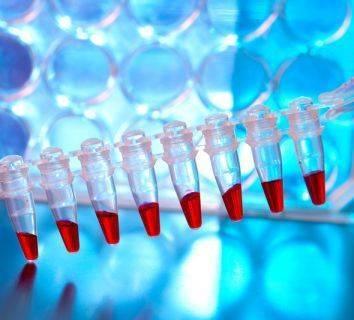 Polimeraz zincir reaksiyonu nedir? PCR tarihçesi, nasıl yapılır ve tıbbi önemi