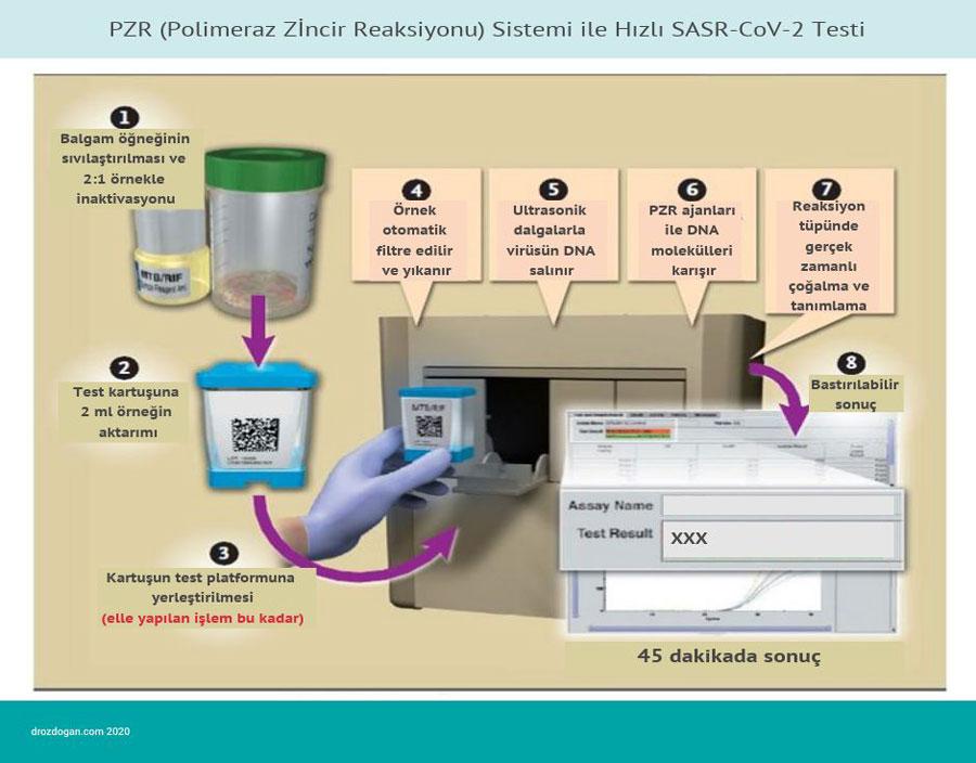 PZR polimeraz zincir reaksiyonu sistemi ile hizli sars cov 2 testi