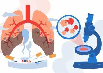 Sigara içme geçmişi ile akciğer kanserinde immünoterapiye yanıt tahmin edilebilir mi?