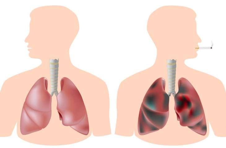 Sigarayı bırakmak, sağlıklı akciğer hücrelerinin çoğalmasını sağlıyor