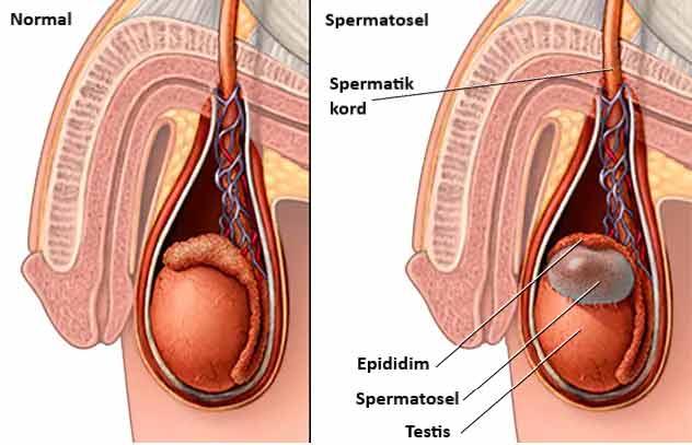 spermatosel nedir