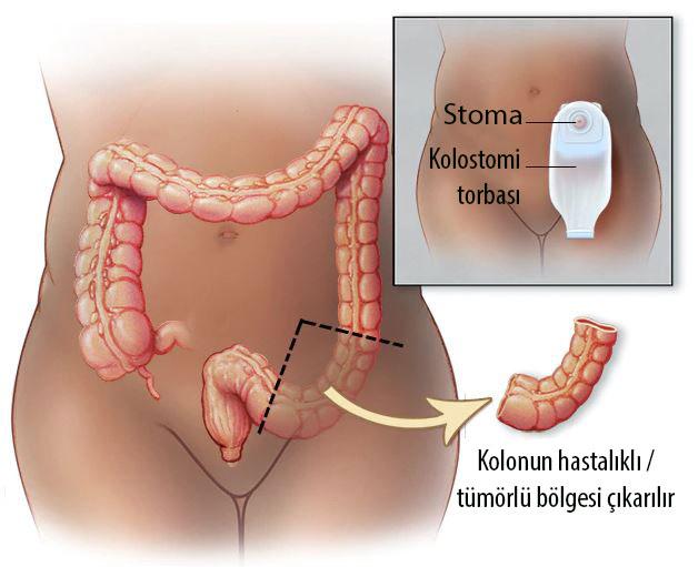 stoma kolestomi torbası nedir kolon kanseri